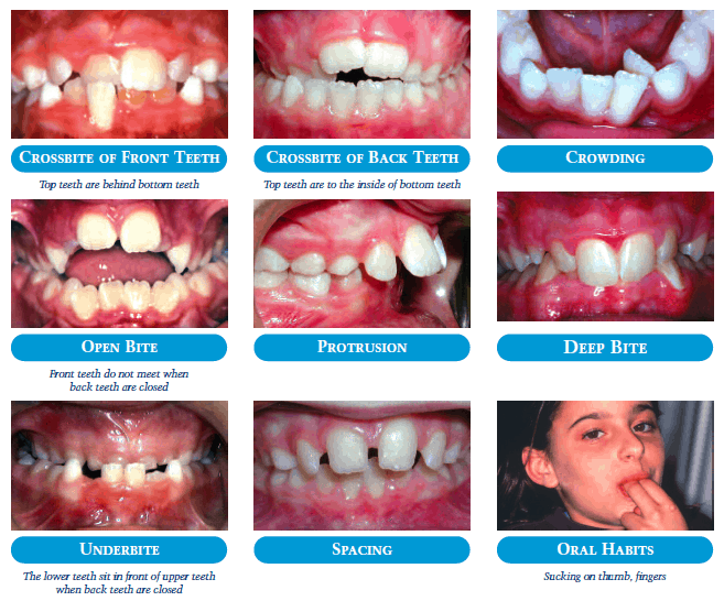 how to fix bad bite without braces